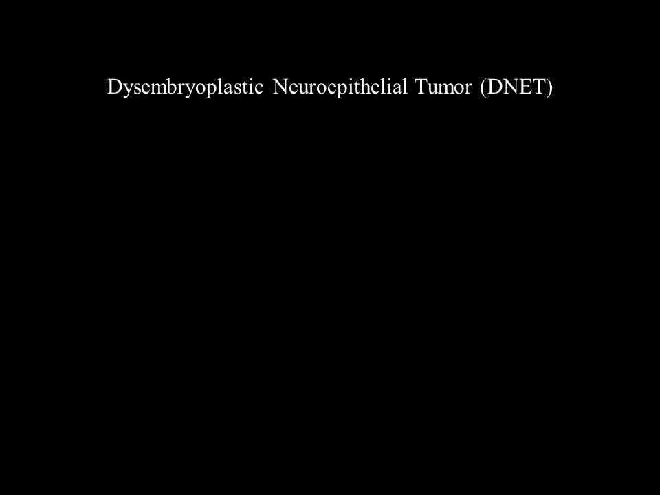 Dysembryoplastic Neuroepithelial Tumor (DNET)