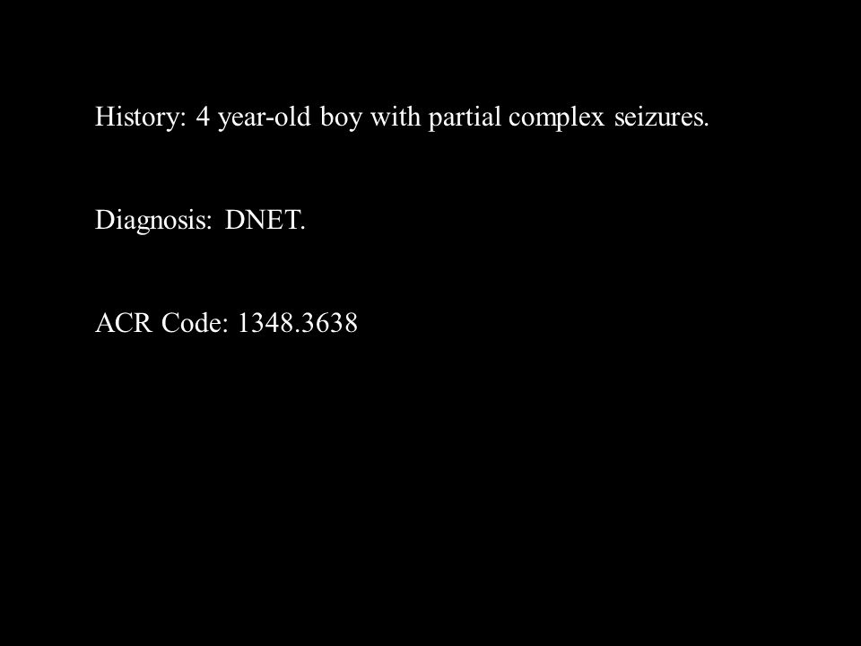 History: 4 year-old boy with partial complex seizures. Diagnosis: DNET. ACR Code: 1348.3638