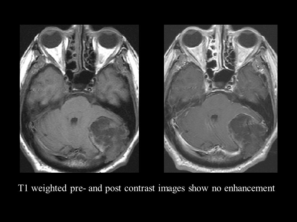 T1 weighted pre- and post contrast images show no enhancement