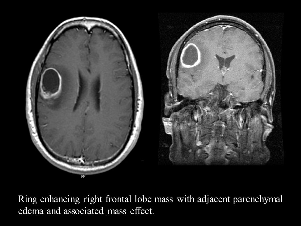 Ring enhancing right frontal lobe mass with adjacent parenchymal edema and associated mass effect.