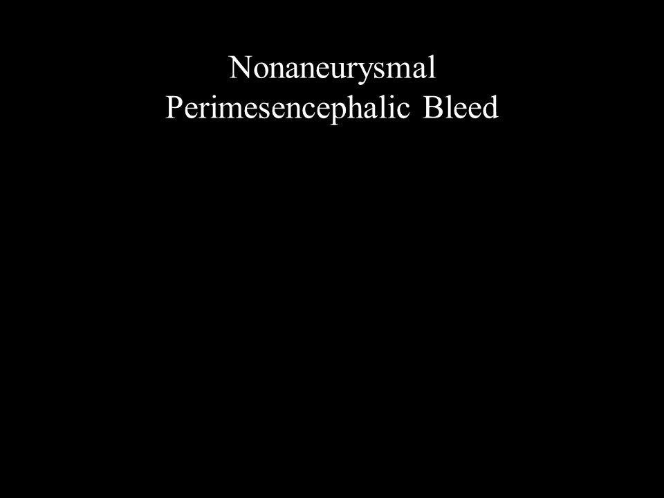 Nonaneurysmal Perimesencephalic Bleed