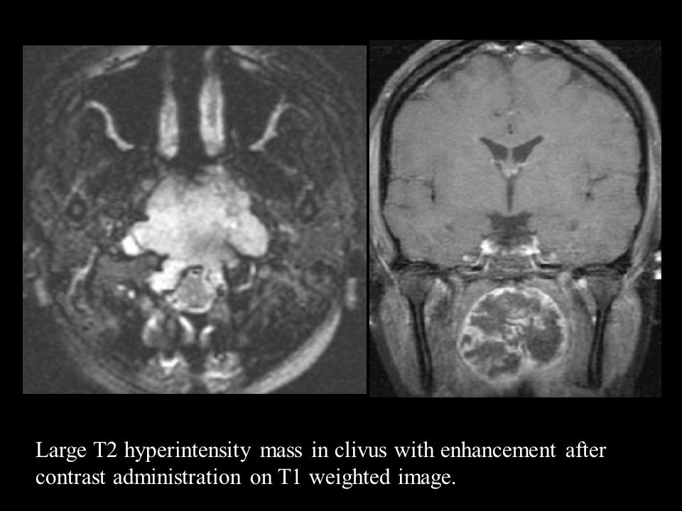 Large T2 hyperintensity mass in clivus with enhancement after contrast administration on T1 weighted image.
