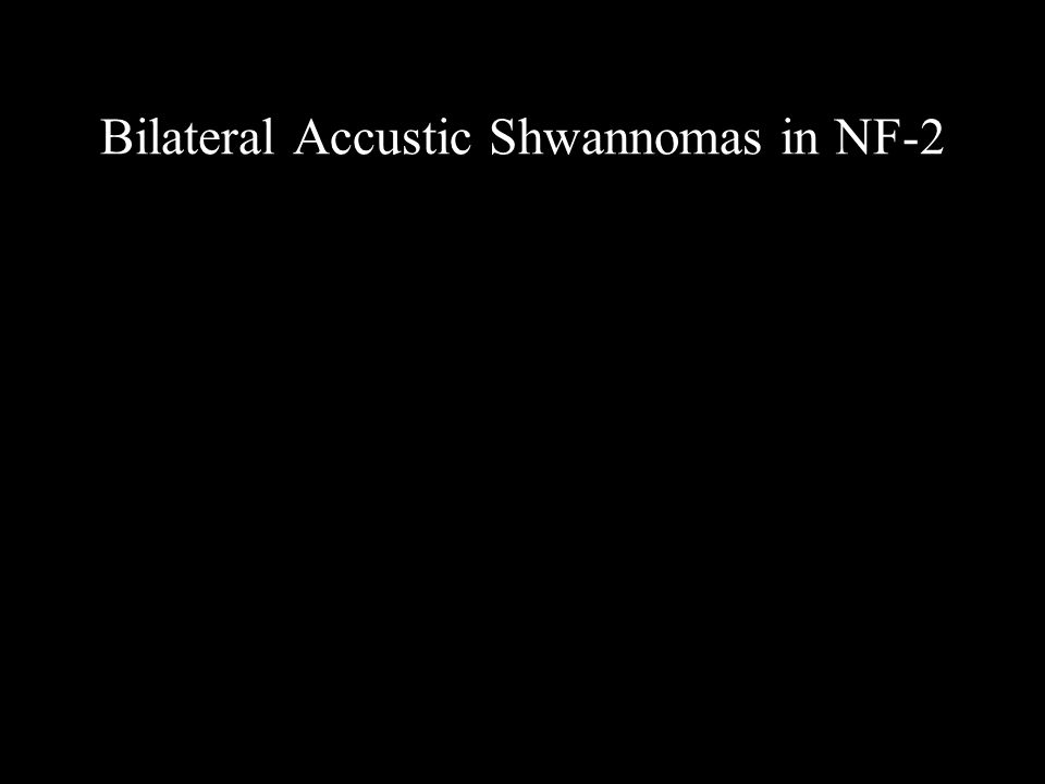Bilateral Accustic Shwannomas in NF-2