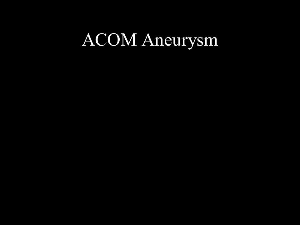 ACOM Aneurysm