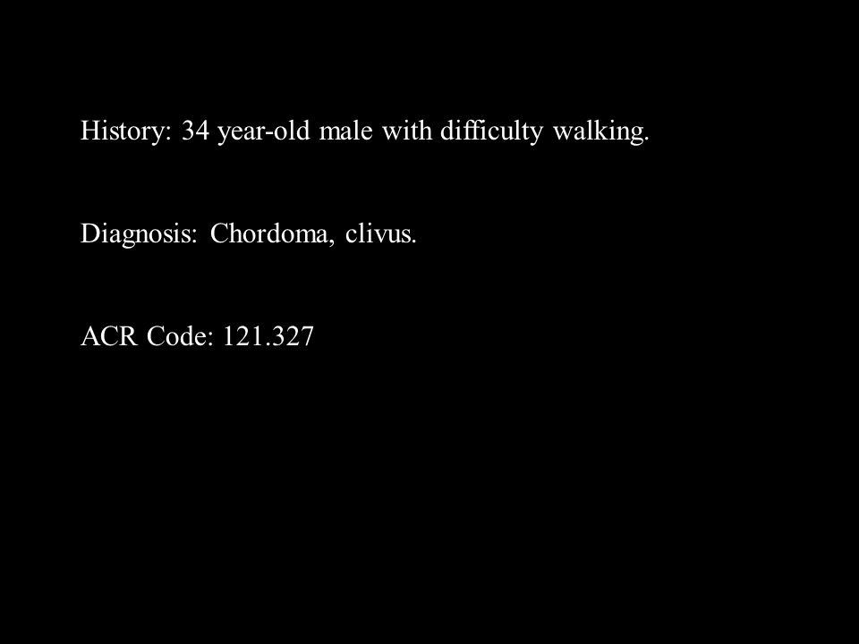 History: 34 year-old male with difficulty walking. Diagnosis: Chordoma, clivus. ACR Code: 121.327