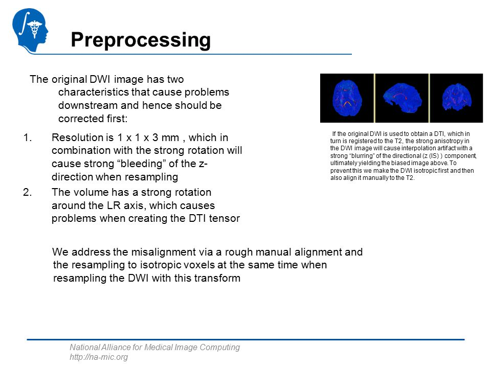 National Alliance for Medical Image Computing   Preprocessing The original DWI image has two characteristics that cause problems downstream and hence should be corrected first: 1.Resolution is 1 x 1 x 3 mm, which in combination with the strong rotation will cause strong bleeding of the z- direction when resampling 2.The volume has a strong rotation around the LR axis, which causes problems when creating the DTI tensor We address the misalignment via a rough manual alignment and the resampling to isotropic voxels at the same time when resampling the DWI with this transform If the original DWI is used to obtain a DTI, which in turn is registered to the T2, the strong anisotropy in the DWI image will cause interpolation artifact with a strong blurring of the directional (z (IS) ) component, ultimately yielding the biased image above.