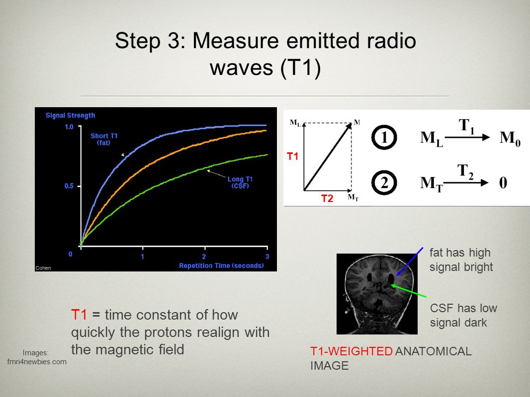 Step 3: Measure emitted radio waves (T1) T1 = time constant of how quickly the protons realign with the magnetic field fat has high signal bright CSF has low signal dark T1-WEIGHTED ANATOMICAL IMAGE Images: fmri4newbies.com T2 T1