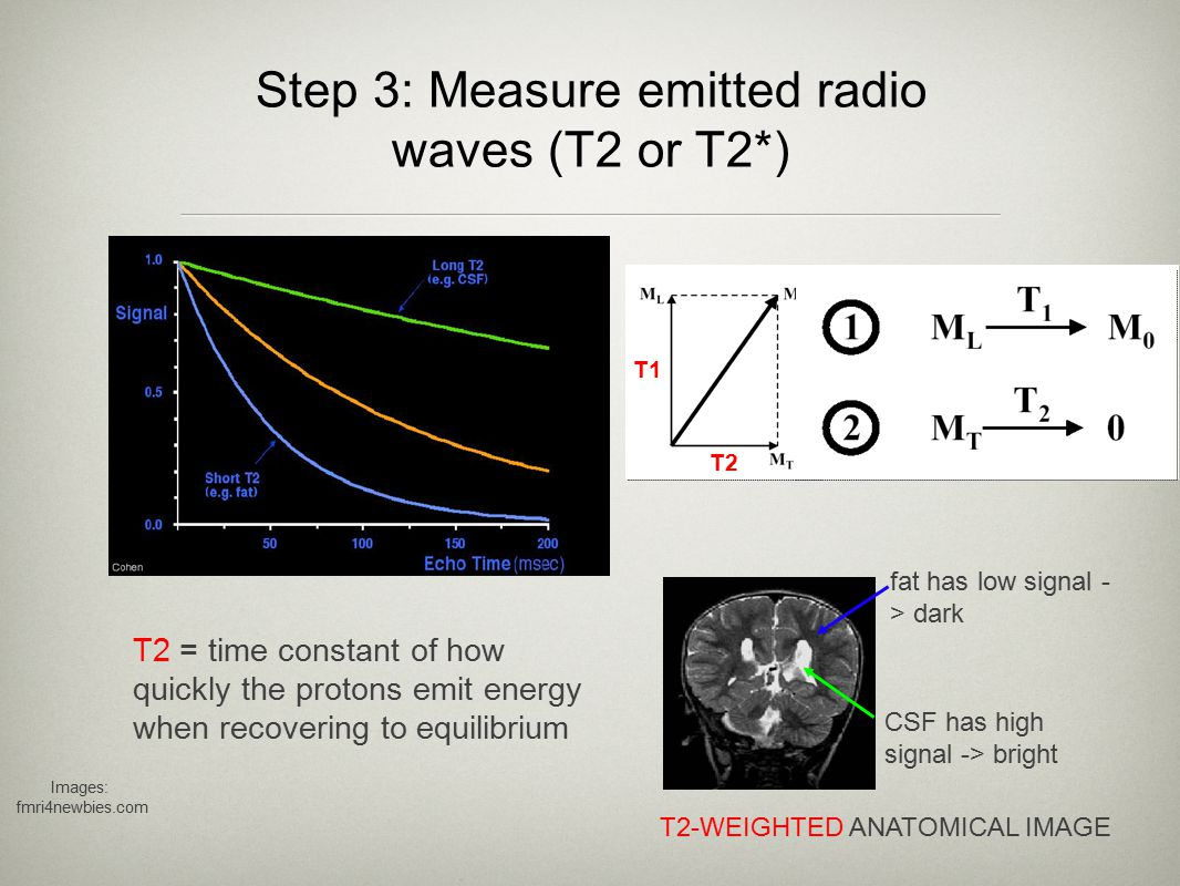 T2 * weighted images Two factors contribute to the decay of transverse magnetization: 1) molecular interactions 2) local inhomogeneities of the magnetic field (dephasing of spins) The combined time constant is called T2* (<T2).
