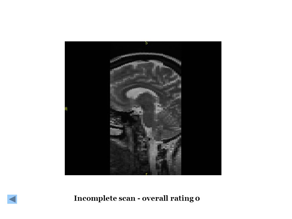 Incomplete scan - overall rating 0