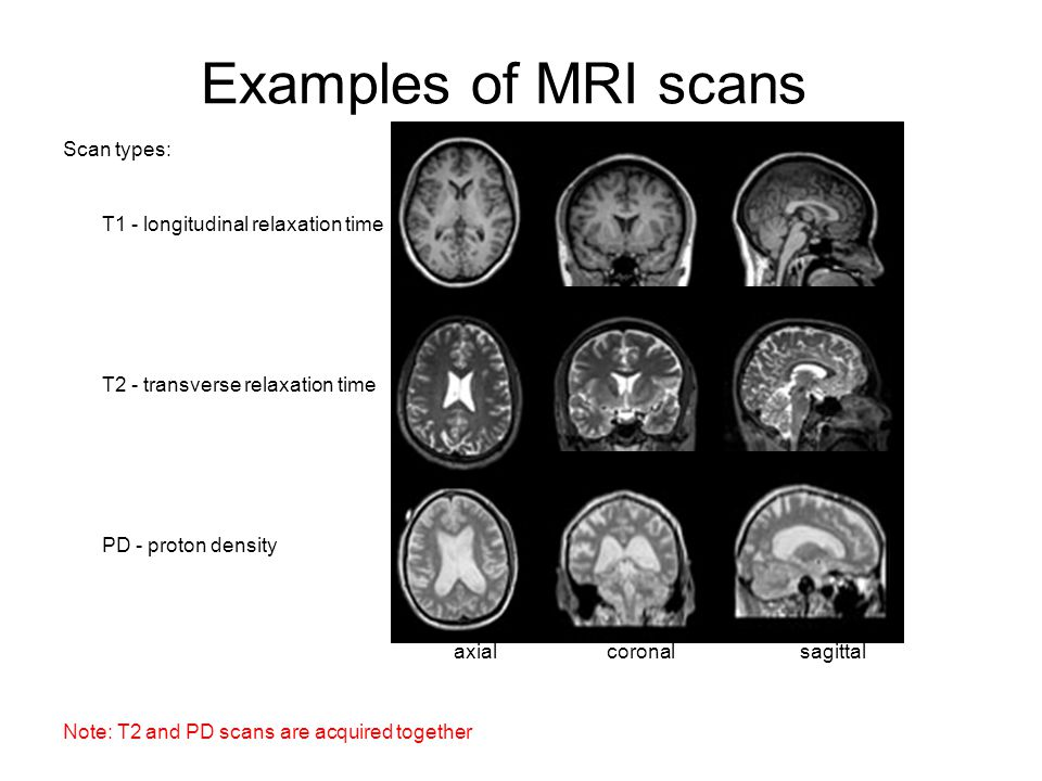 A Brief Description of Scan Artifacts An image artifact is a structure not normally present but visible as a result of a limitation or malfunction in the hardware or software of the MRI device, or in other cases a consequence of environmental influences as heat or humidity or it can be caused by the human body (blood flow, implants etc.).