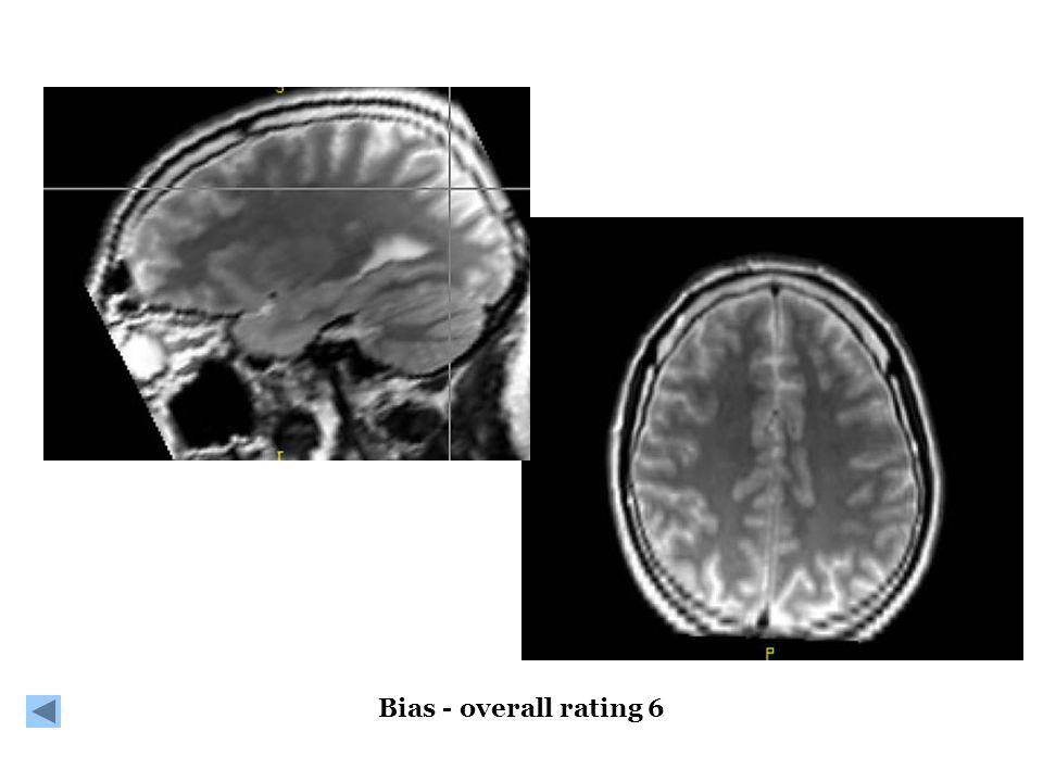Bias - overall rating 6