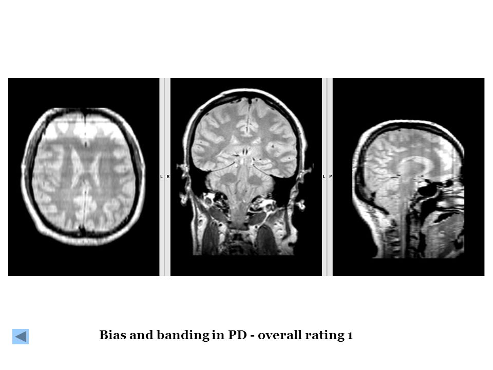 Bias and banding in PD - overall rating 1