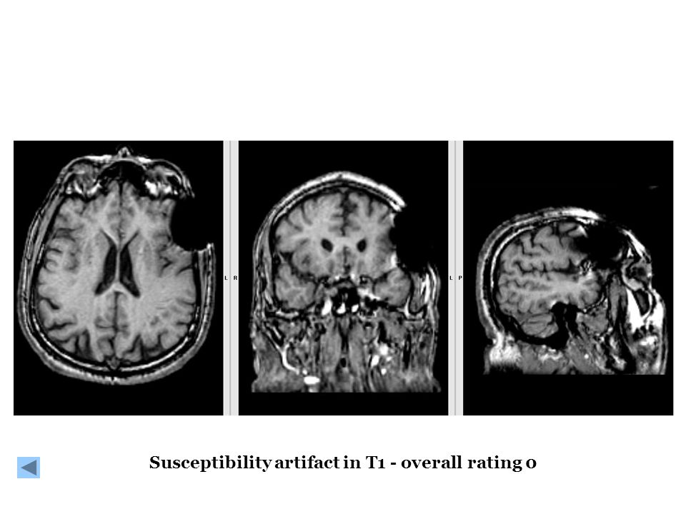 Susceptibility artifact in T1 - overall rating 0