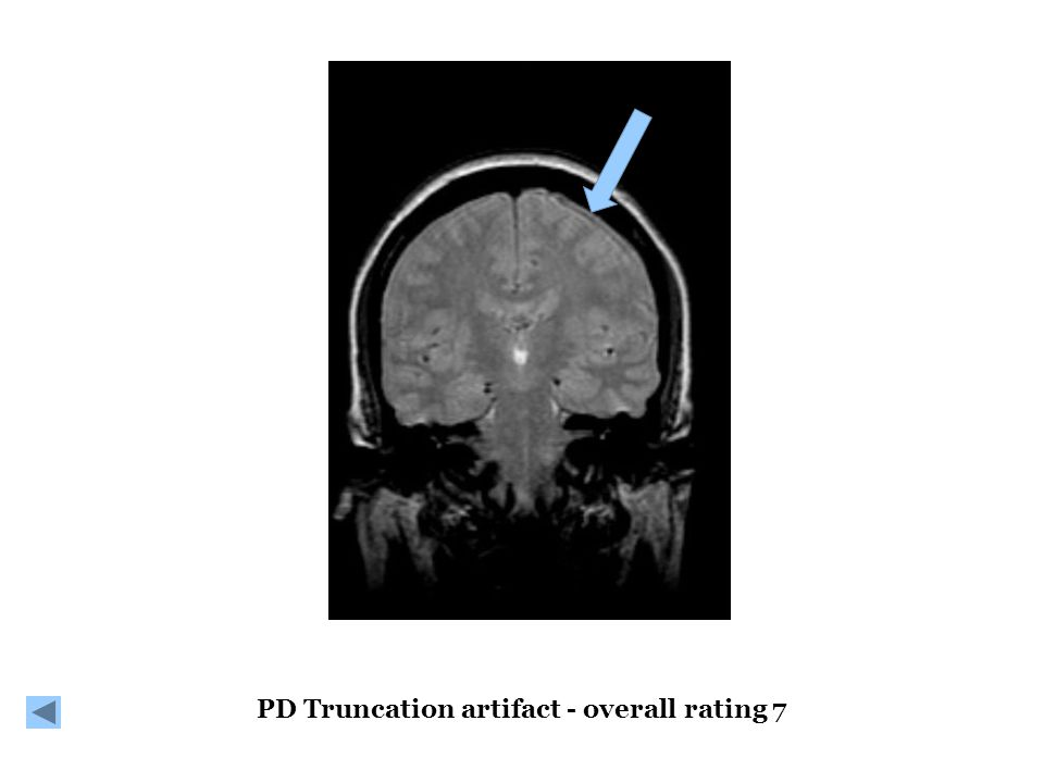 PD Truncation artifact - overall rating 7