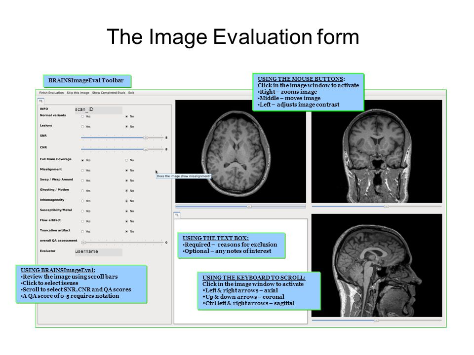 The Image Evaluation form USING THE TEXT BOX: Required – reasons for exclusion Optional – any notes of interest USING BRAINSImageEval: Review the imag