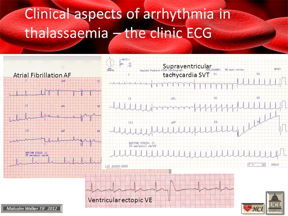 Malcolm Walker TIF 2012 Clinical aspects of arrhythmia in thalassaemia – the clinic ECG Atrial Fibrillation AF Supraventricular tachycardia SVT Ventricular ectopic VE
