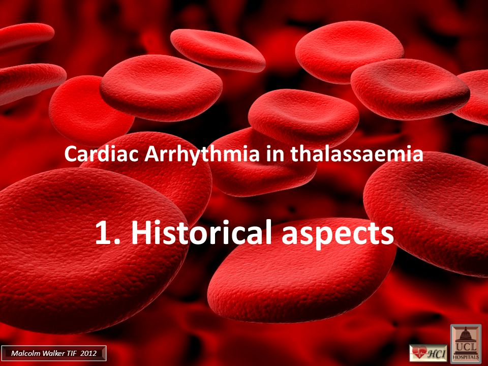 Malcolm Walker TIF 2012 Cardiac Arrhythmia in thalassaemia 1. Historical aspects