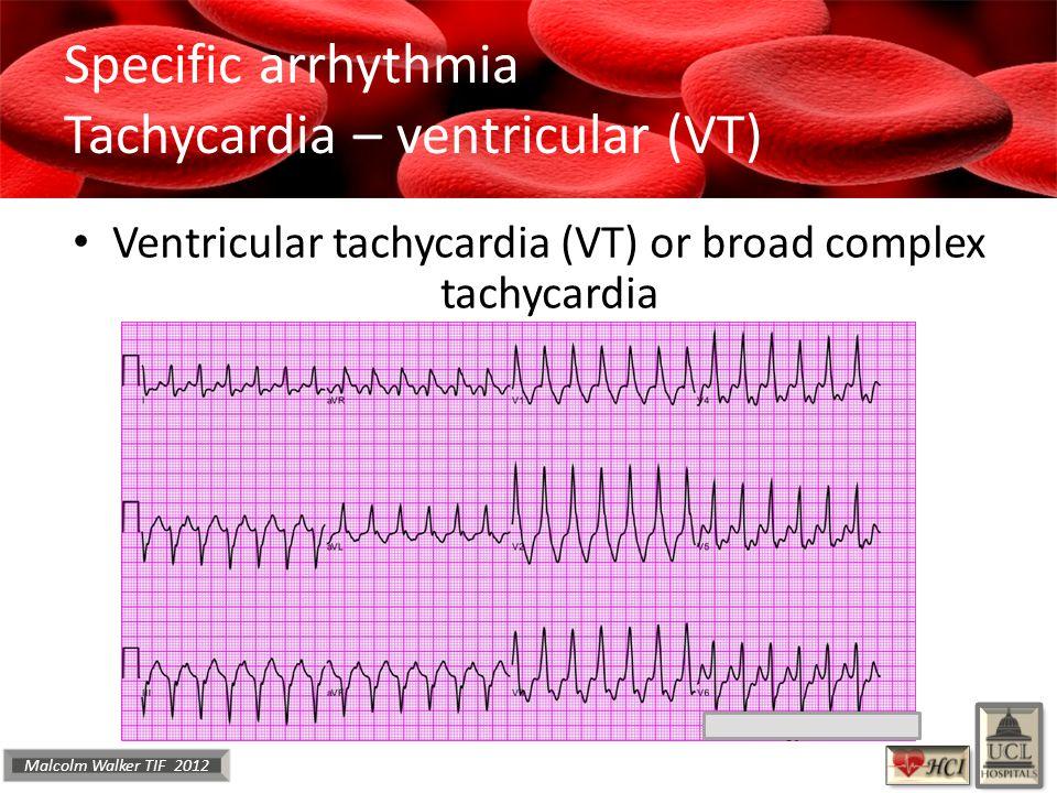 Malcolm Walker TIF 2012 Specific arrhythmia Tachycardia – ventricular (VT) Ventricular tachycardia (VT) or broad complex tachycardia