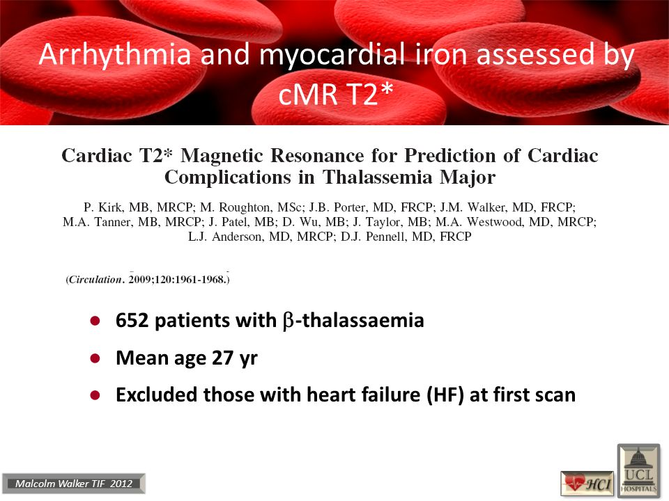 Malcolm Walker TIF 2012 ● 652 patients with  -thalassaemia ● Mean age 27 yr ● Excluded those with heart failure (HF) at first scan Arrhythmia and myocardial iron assessed by cMR T2*