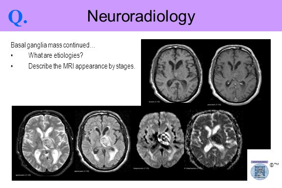 ©™ Neuroradiology Q. Basal ganglia mass continued… What are etiologies? Describe the MRI appearance by stages.