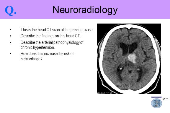 ©™ This is the head CT scan of the previous case. Describe the findings on this head CT. Describe the arterial pathophysiology of chronic hypertension