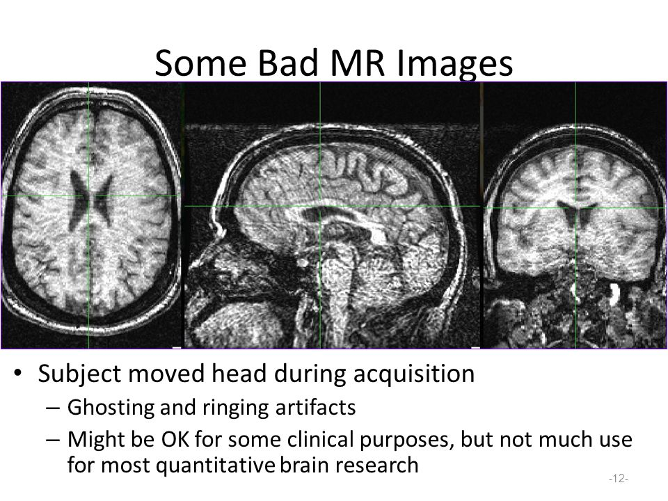 Some Bad MR Images Subject moved head during acquisition – Ghosting and ringing artifacts – Might be OK for some clinical purposes, but not much use for most quantitative brain research -12-