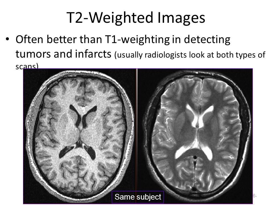 T2-Weighted Images Often better than T1-weighting in detecting tumors and infarcts (usually radiologists look at both types of scans) -16- Same subject