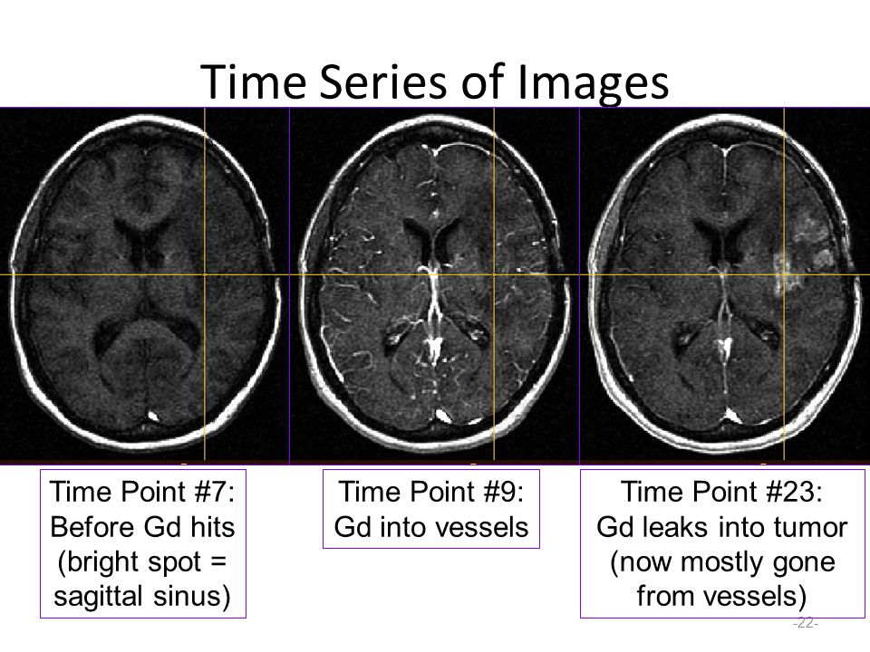 Time Series of Images -22- Time Point #7: Before Gd hits (bright spot = sagittal sinus) Time Point #9: Gd into vessels Time Point #23: Gd leaks into tumor (now mostly gone from vessels)