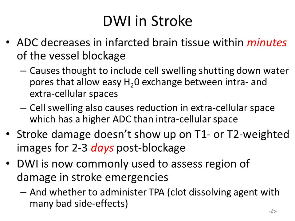 DWI in Stroke ADC decreases in infarcted brain tissue within minutes of the vessel blockage – Causes thought to include cell swelling shutting down water pores that allow easy H 2 0 exchange between intra- and extra-cellular spaces – Cell swelling also causes reduction in extra-cellular space which has a higher ADC than intra-cellular space Stroke damage doesn't show up on T1- or T2-weighted images for 2-3 days post-blockage DWI is now commonly used to assess region of damage in stroke emergencies – And whether to administer TPA (clot dissolving agent with many bad side-effects) -25-