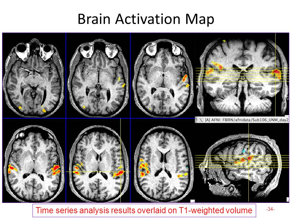 Brain Activation Map -34- Time series analysis results overlaid on T1-weighted volume