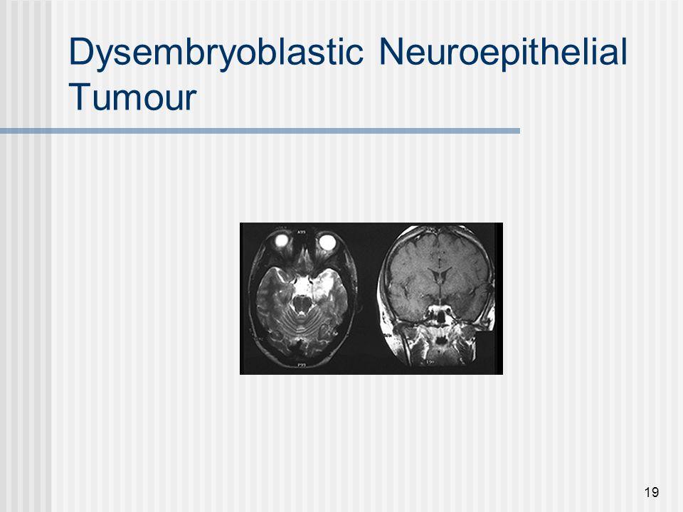 19 Dysembryoblastic Neuroepithelial Tumour
