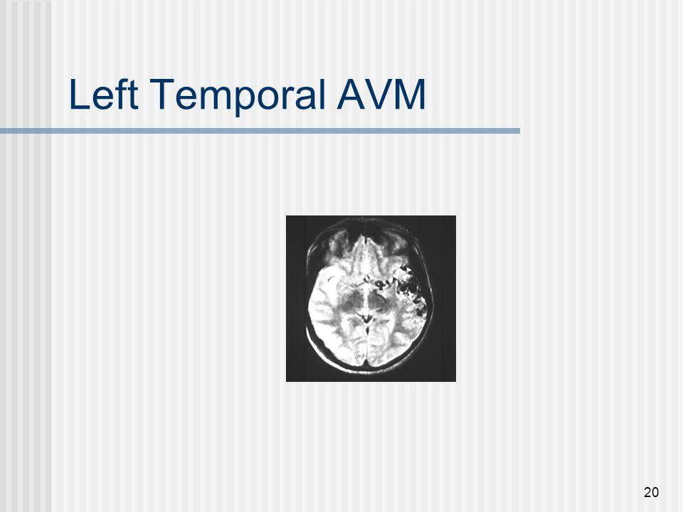 20 Left Temporal AVM
