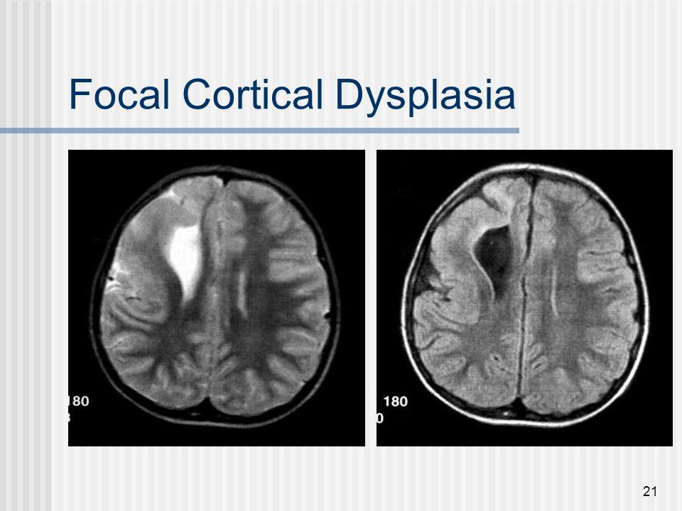 21 Focal Cortical Dysplasia