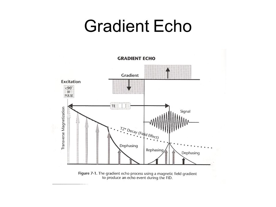 Gradient Echo