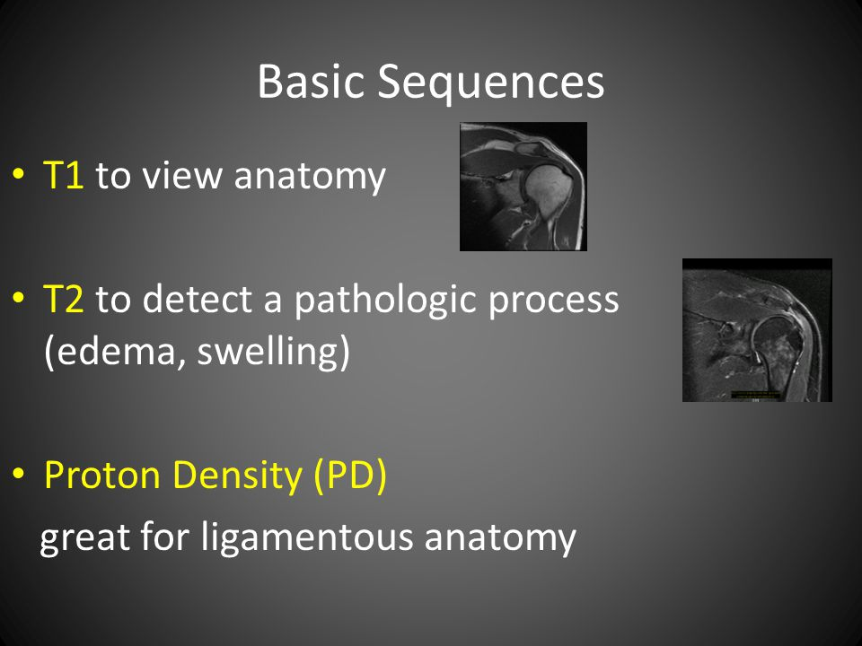 Basic Sequences T1 to view anatomy T2 to detect a pathologic process (edema, swelling) Proton Density (PD) great for ligamentous anatomy