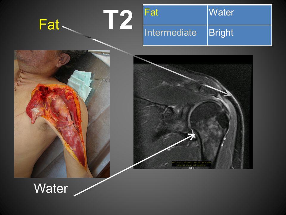 T2 Fat Water FatWater IntermediateBright