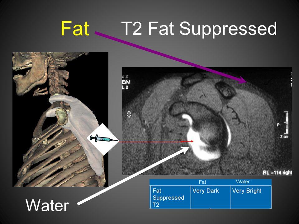 T2 Fat Suppressed Water Fat