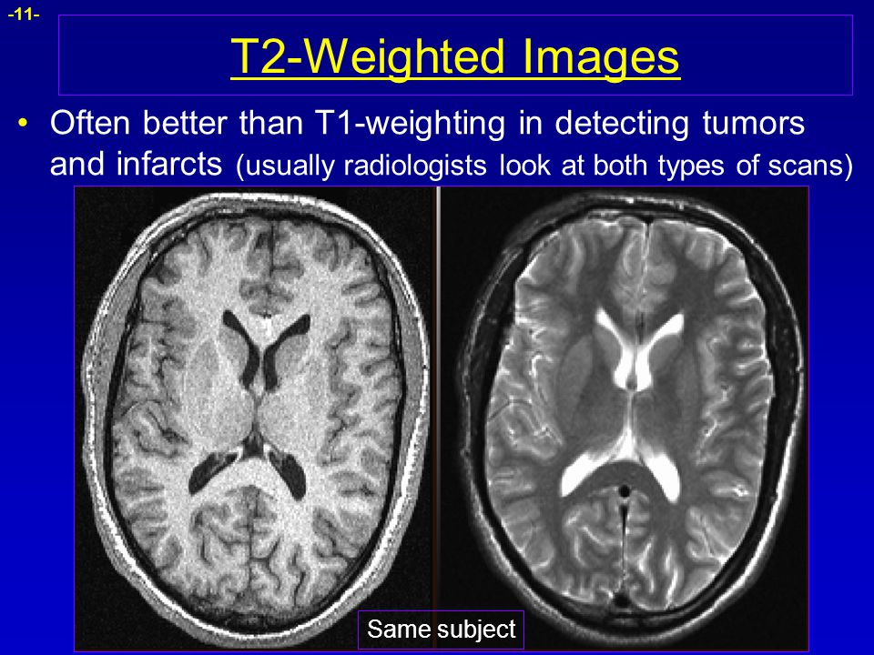 -11- T2-Weighted Images Often better than T1-weighting in detecting tumors and infarcts (usually radiologists look at both types of scans) Same subjec