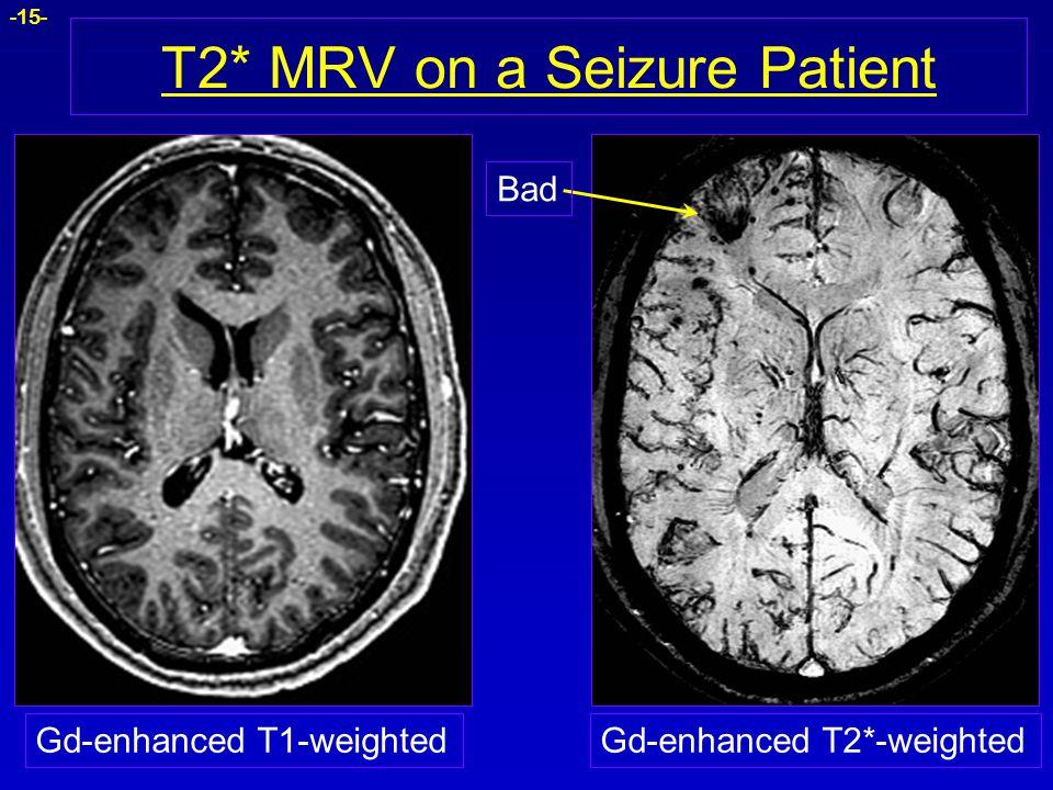 -15- T2* MRV on a Seizure Patient Gd-enhanced T1-weightedGd-enhanced T2*-weighted Bad