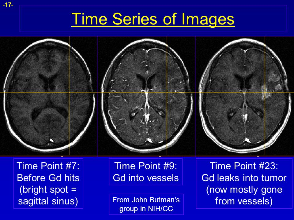 -17- Time Series of Images Time Point #7: Before Gd hits (bright spot = sagittal sinus) Time Point #9: Gd into vessels Time Point #23: Gd leaks into t