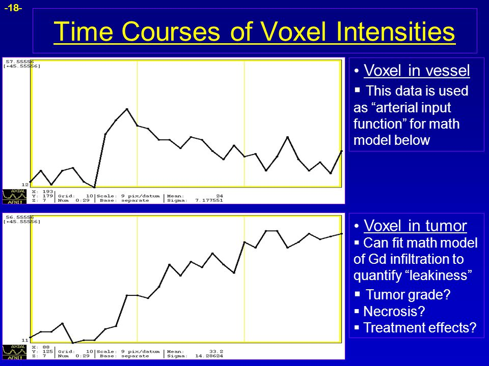 """-18- Time Courses of Voxel Intensities Voxel in tumor  Can fit math model of Gd infiltration to quantify """"leakiness""""  Tumor grade?  Necrosis?  Tre"""