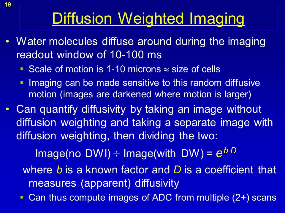 -19- Diffusion Weighted Imaging Water molecules diffuse around during the imaging readout window of 10-100 ms  Scale of motion is 1-10 microns  size