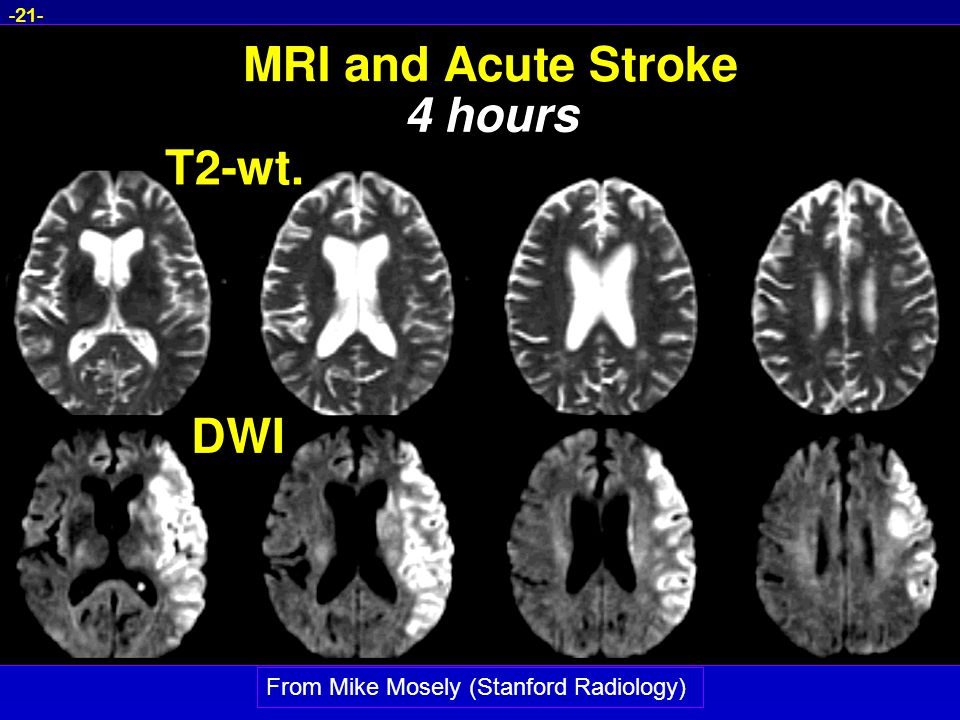 -21- From Mike Mosely (Stanford Radiology)