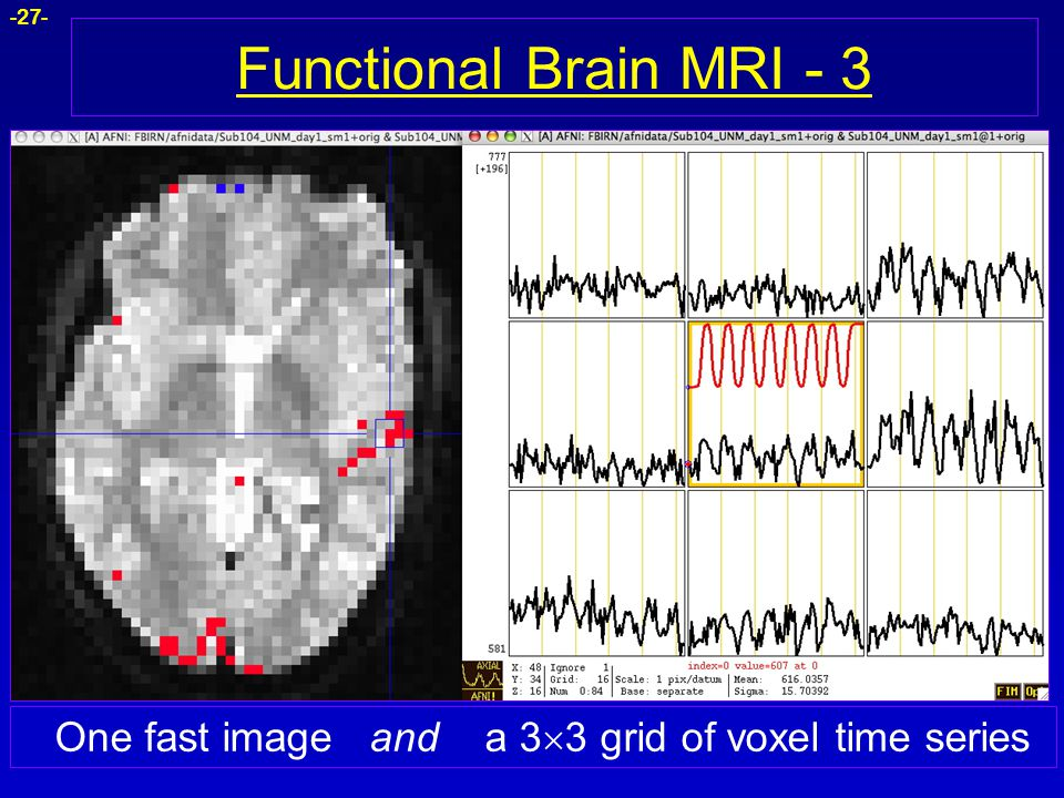 -27- Functional Brain MRI - 3 One fast image and a 3  3 grid of voxel time series