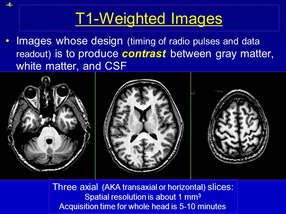 -4- T1-Weighted Images Images whose design (timing of radio pulses and data readout) is to produce contrast between gray matter, white matter, and CSF