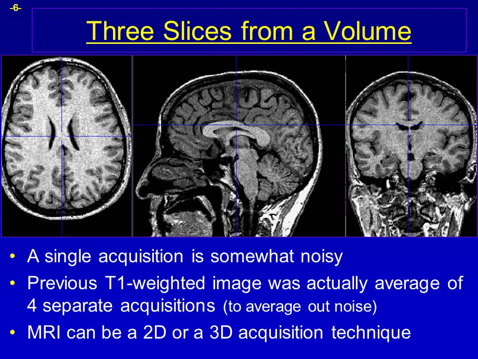 -6- Three Slices from a Volume A single acquisition is somewhat noisy Previous T1-weighted image was actually average of 4 separate acquisitions (to a