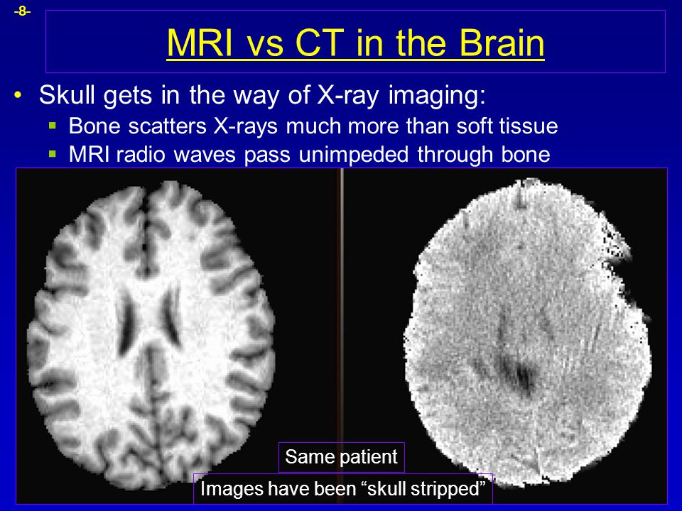 -8- MRI vs CT in the Brain Skull gets in the way of X-ray imaging:  Bone scatters X-rays much more than soft tissue  MRI radio waves pass unimpeded