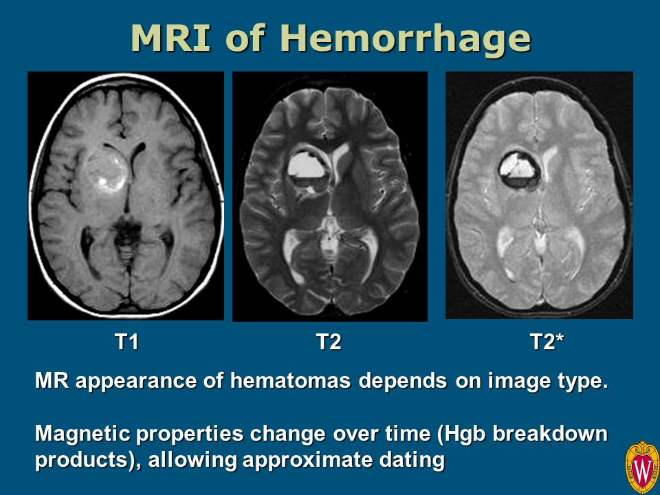MRI of Hemorrhage MR appearance of hematomas depends on image type. Magnetic properties change over time (Hgb breakdown products), allowing approximat