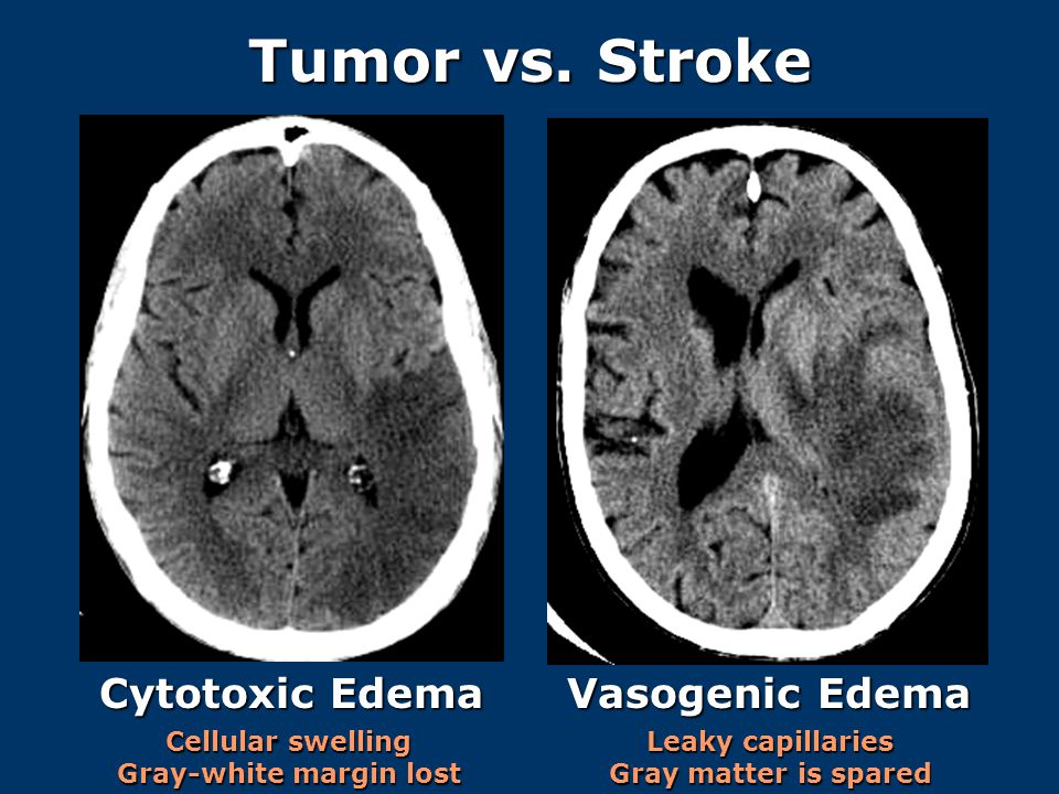 Tumor vs. Stroke Cytotoxic Edema Vasogenic Edema Cellular swelling Gray-white margin lost Leaky capillaries Gray matter is spared
