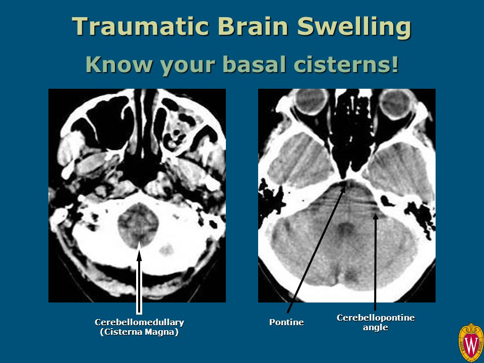 Traumatic Brain Swelling Cerebellopontine angle Pontine Cerebellomedullary (Cisterna Magna) Know your basal cisterns!